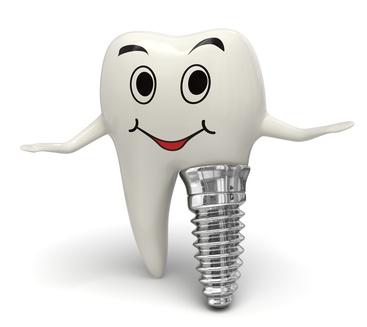 Image result for dental facet